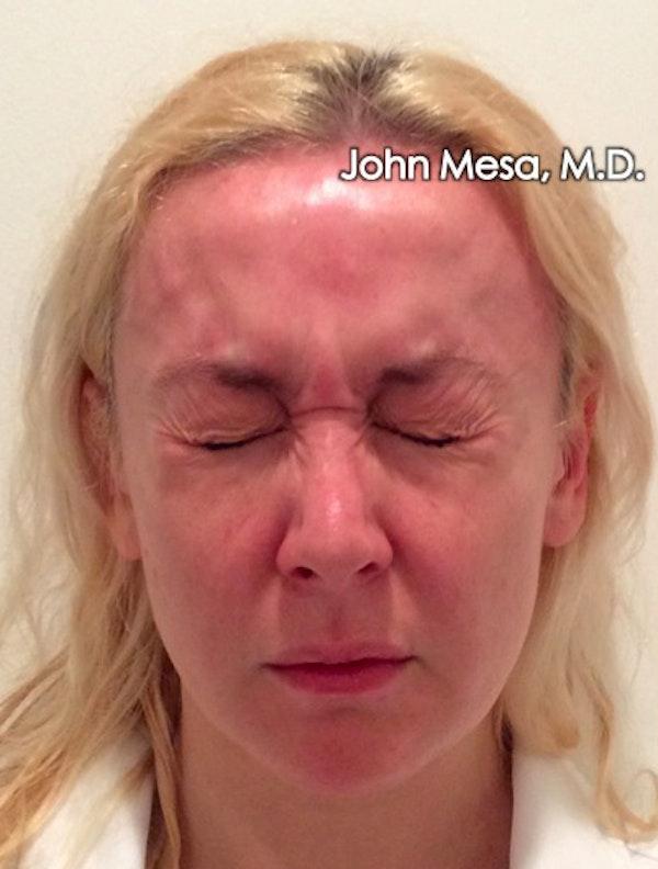Botox Gallery - Patient 6371562 - Image 5