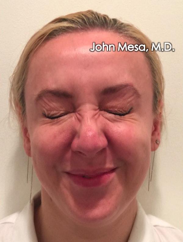Botox Gallery - Patient 6371562 - Image 6