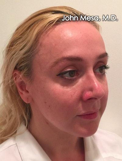 Botox Gallery - Patient 6371562 - Image 8
