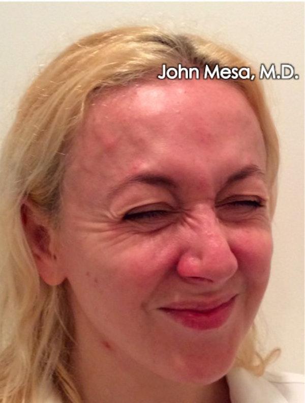 Botox Gallery - Patient 6371562 - Image 9