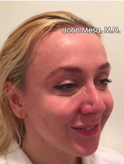 Botox Gallery - Patient 6371562 - Image 10