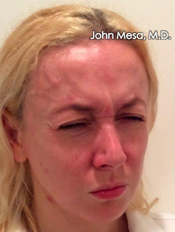 Botox Gallery - Patient 6371562 - Image 11