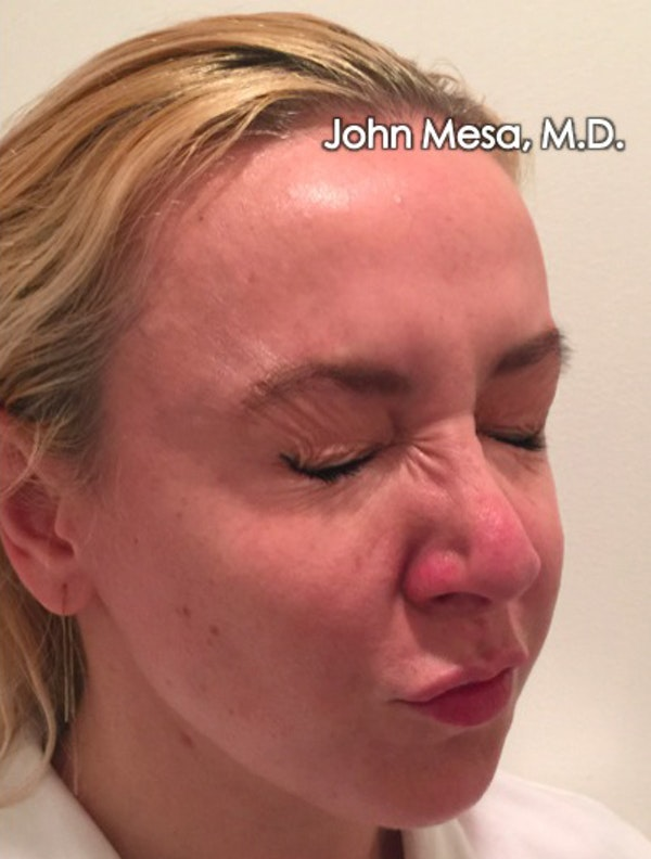 Botox Gallery - Patient 6371562 - Image 12