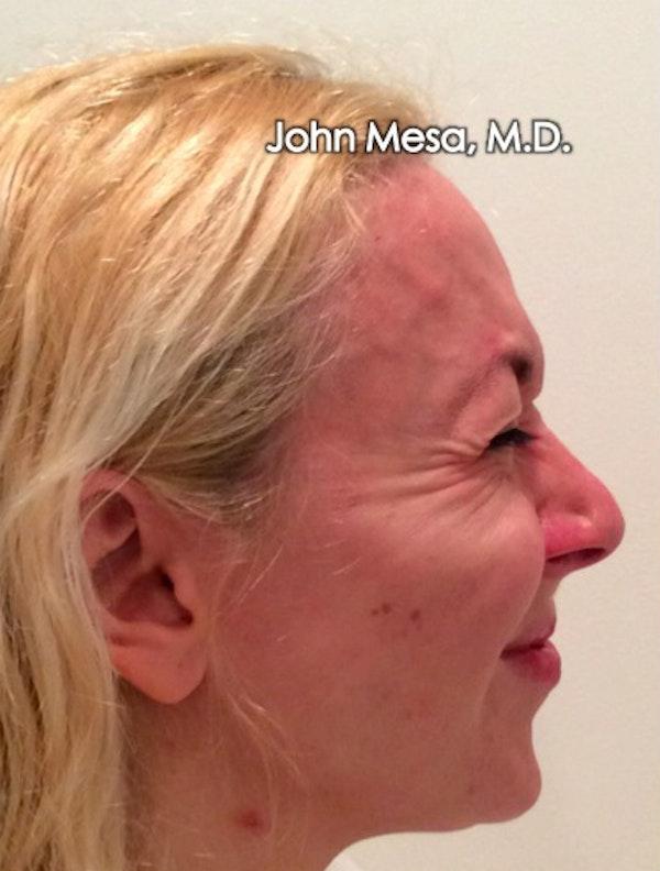 Botox Gallery - Patient 6371562 - Image 13