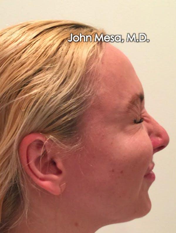 Botox Gallery - Patient 6371562 - Image 14