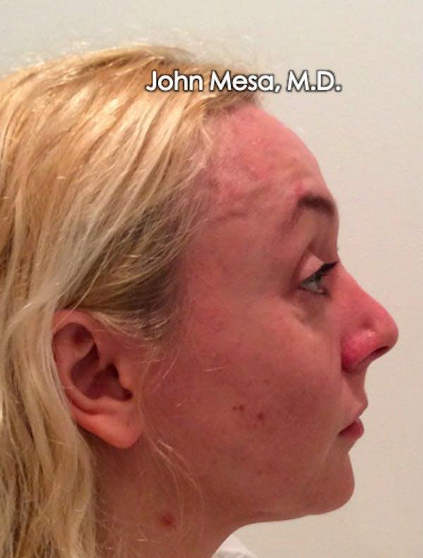 Botox Gallery - Patient 6371562 - Image 15