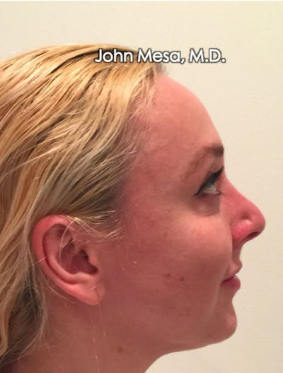 Botox Gallery - Patient 6371562 - Image 16