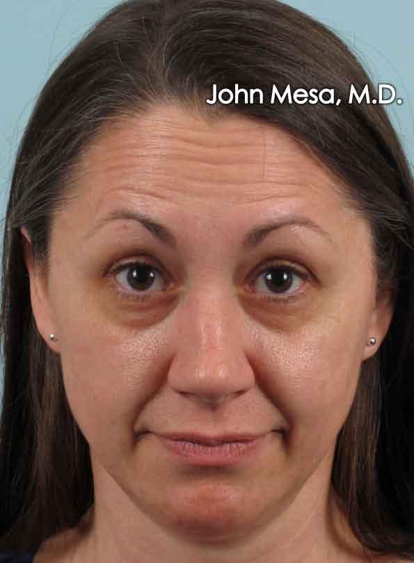 Botox Gallery - Patient 6371564 - Image 1