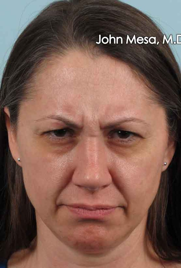 Botox Gallery - Patient 6371564 - Image 3