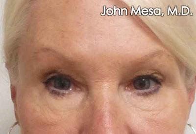 Botox Gallery - Patient 6371567 - Image 1