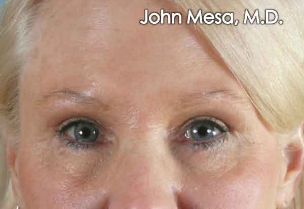 Botox Gallery - Patient 6371567 - Image 2