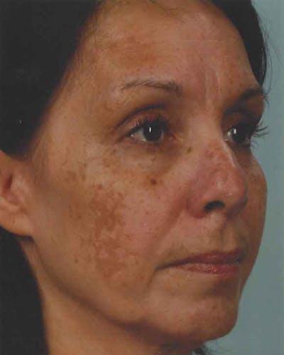 Obagi Nu Derm 2 Gallery - Patient 6371574 - Image 3