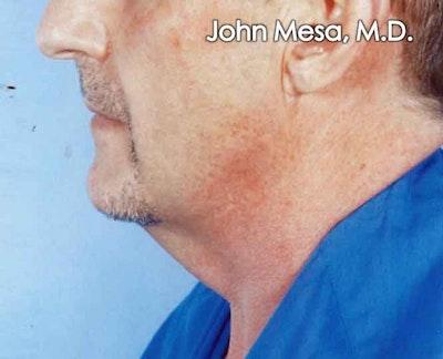 Neck Lift Gallery - Patient 6371581 - Image 1
