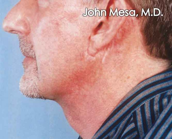 Neck Lift Gallery - Patient 6371581 - Image 2