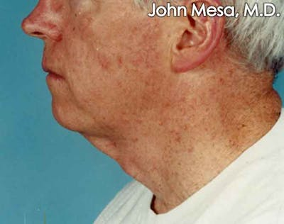 Neck Lift Gallery - Patient 6371583 - Image 1
