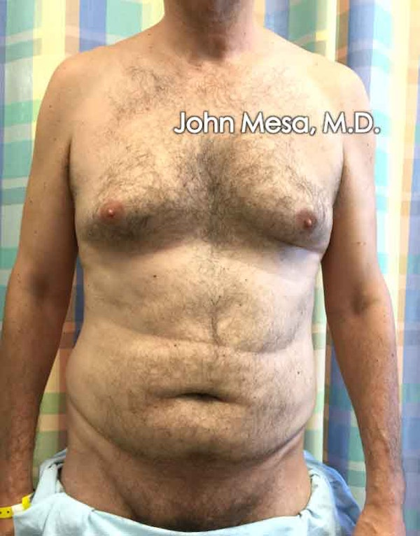 Liposuction Gallery - Patient 6371586 - Image 1