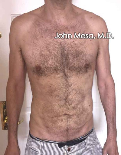 Liposuction Gallery - Patient 6371586 - Image 2