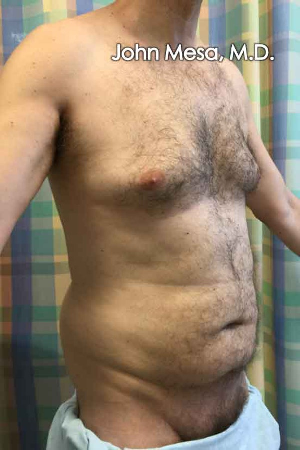 Liposuction Gallery - Patient 6371586 - Image 3