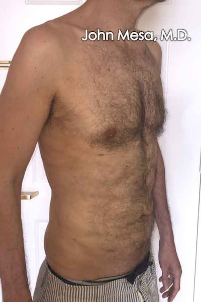 Liposuction Gallery - Patient 6371586 - Image 4