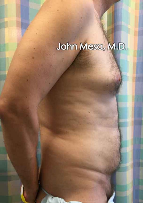 Liposuction Gallery - Patient 6371586 - Image 5