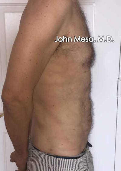 Liposuction Gallery - Patient 6371586 - Image 6