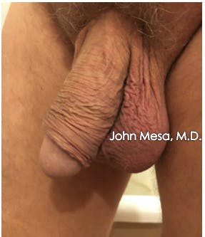 Botox for Scrotum (Scrotox) Gallery - Patient 6371632 - Image 1