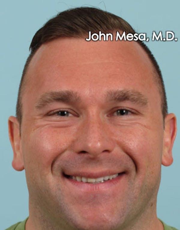 Botox Gallery - Patient 6371635 - Image 5