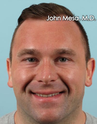 Botox Gallery - Patient 6371635 - Image 6