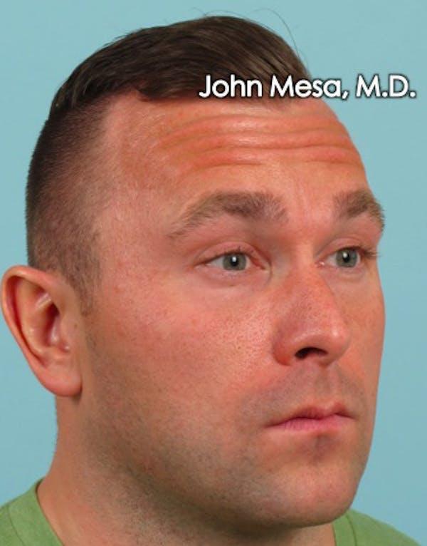 Botox Gallery - Patient 6371635 - Image 7
