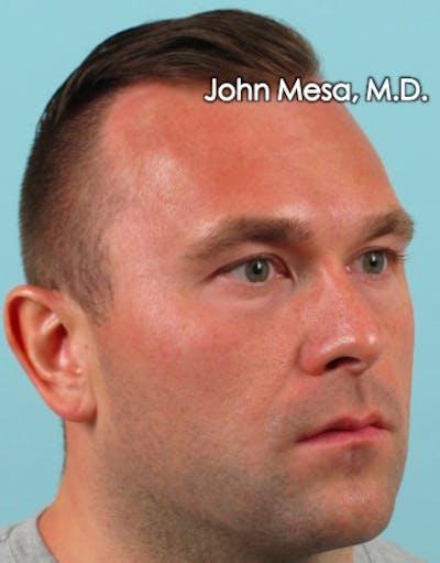 Botox Gallery - Patient 6371635 - Image 8