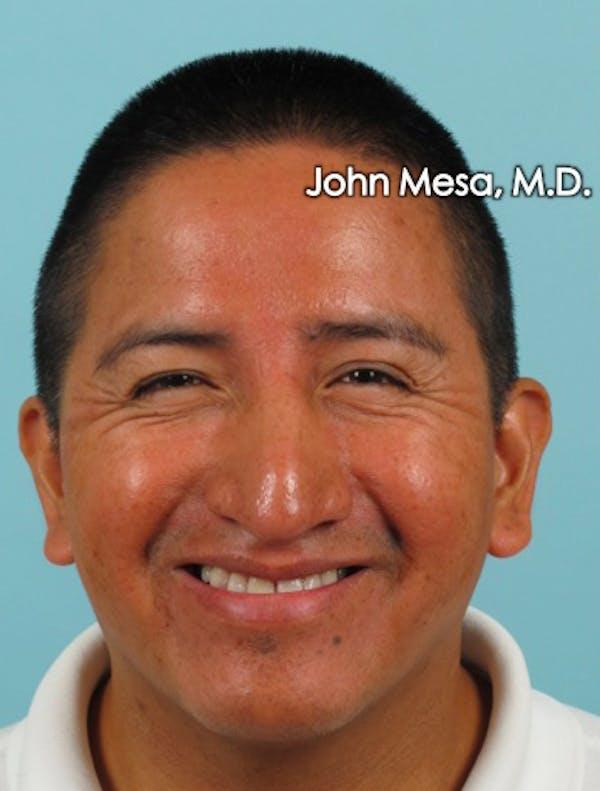 Botox Gallery - Patient 6371639 - Image 3