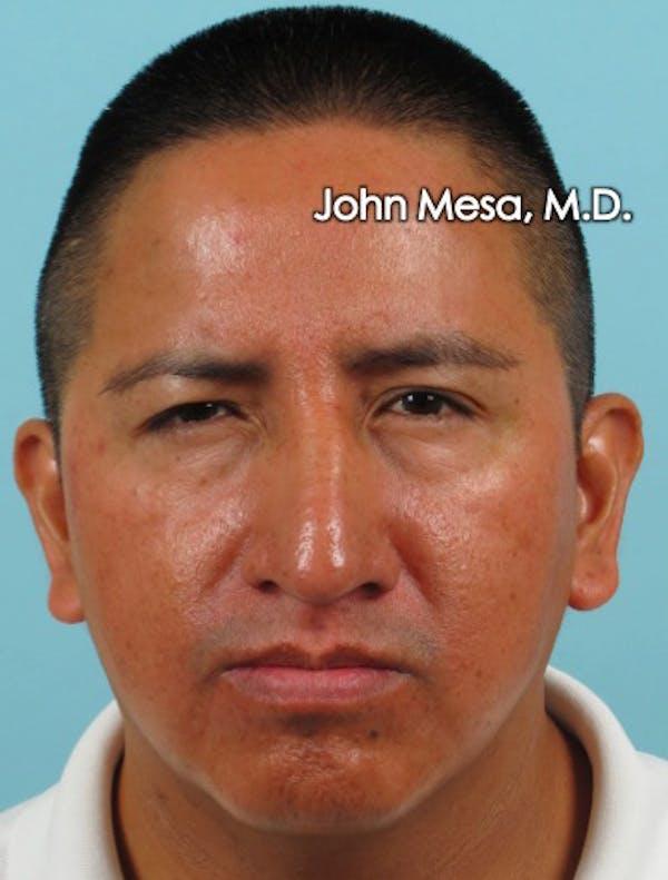 Botox Gallery - Patient 6371639 - Image 6