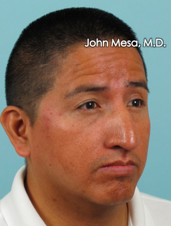 Botox Gallery - Patient 6371639 - Image 7