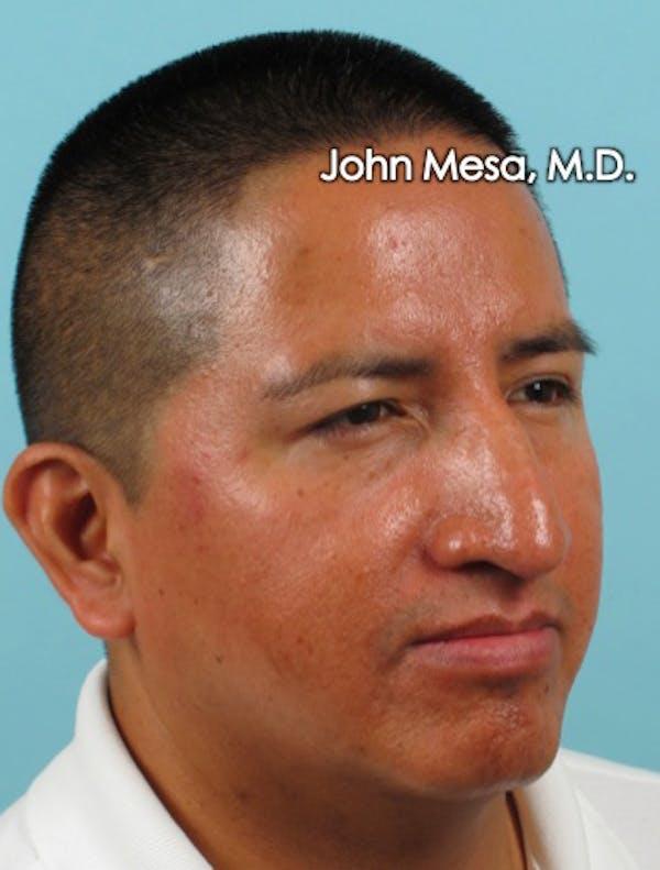 Botox Gallery - Patient 6371639 - Image 8