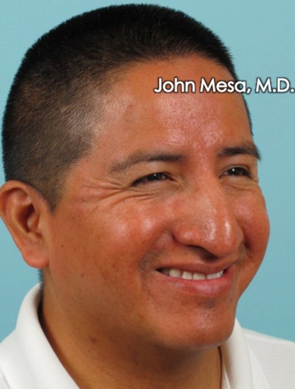 Botox Gallery - Patient 6371639 - Image 9