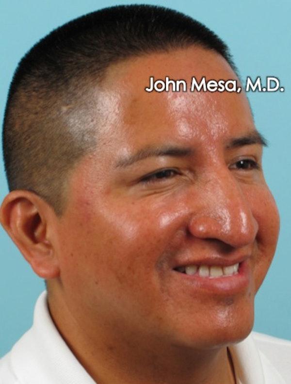 Botox Gallery - Patient 6371639 - Image 10