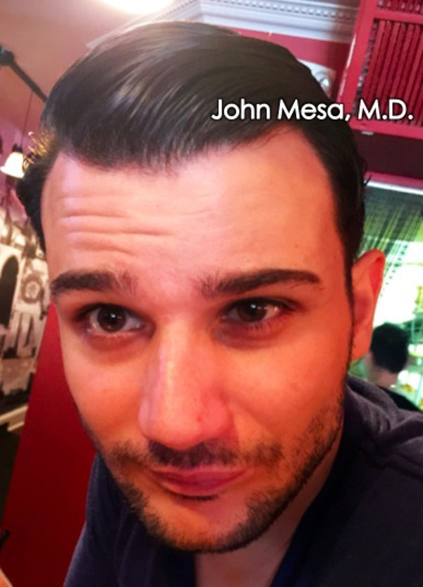 Botox Gallery - Patient 6371643 - Image 1