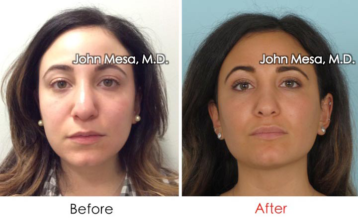 Before and after buccal fat pad removal in NYC with Dr. Mesa