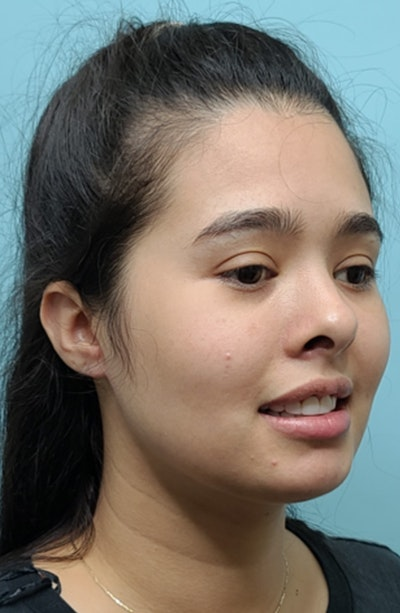 Buccal Fat Pad Removal Gallery - Patient 13842357 - Image 4