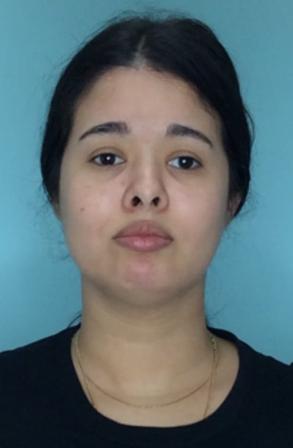 Buccal Fat Pad Removal Gallery - Patient 13842357 - Image 1