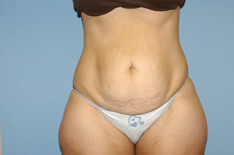 Tummy Tuck Gallery - Patient 6389341 - Image 1