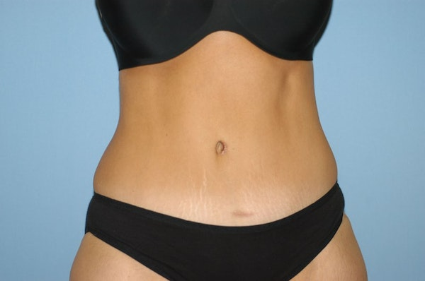 Before and After Abdominoplasty in Long Island