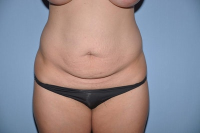 Tummy Tuck Gallery - Patient 6389345 - Image 1