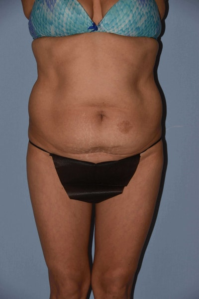 Tummy Tuck Gallery - Patient 6389347 - Image 1