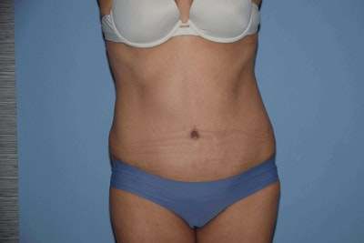 Tummy Tuck Gallery - Patient 6389347 - Image 2