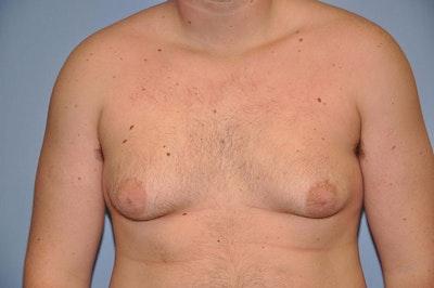 Gynecomastia Gallery - Patient 6389429 - Image 1
