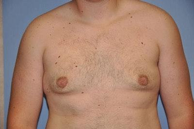 Gynecomastia Gallery - Patient 6389429 - Image 2