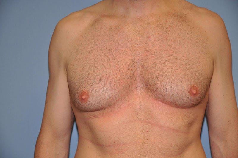 Gynecomastia Gallery - Patient 6389431 - Image 1