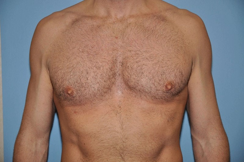 Long Island Gynecomastia Surgery Before and After