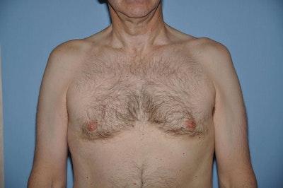 Gynecomastia Gallery - Patient 6389432 - Image 2